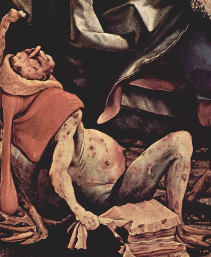 Krankheiten im Mittelalter – Antoniusfeuer