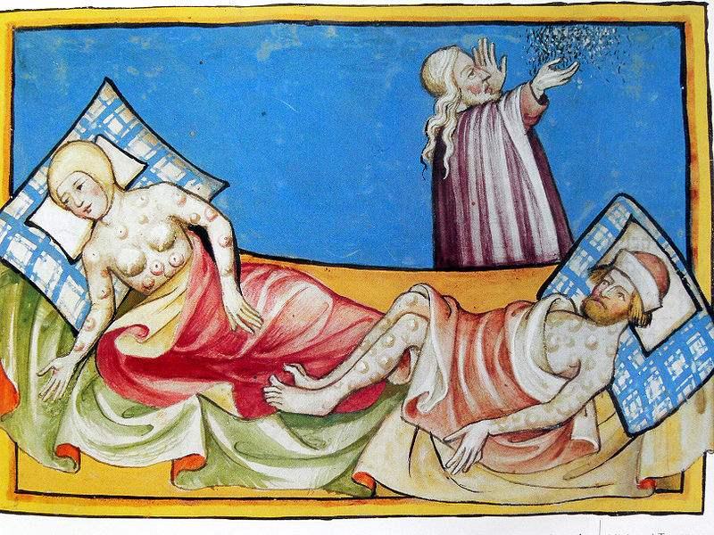 Krankheiten im Mittelalter – Pocken
