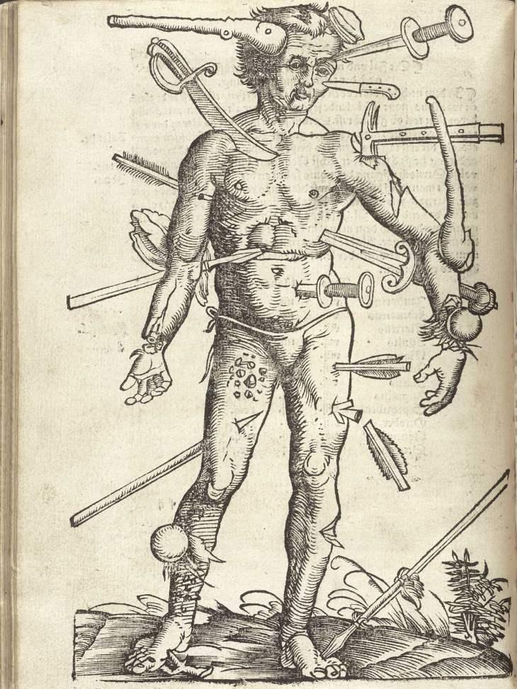Der verwundete Mann. Feldtbuch der Wundartzney (Strasburg, 1528)