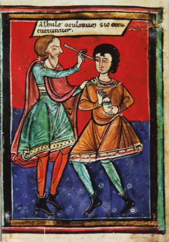 Starstich im 11. Jahrhundert - Aus einem Manuskript der Schule von Salerno. (British Museum, London)